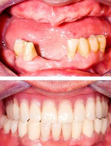 failing teeth