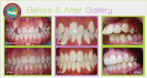 fastbraces gallery before & after