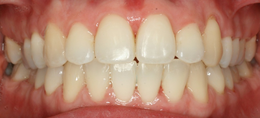 Our patient Wioleta's teeth after Fastbraces® treatment. Photo by P J Laskowski