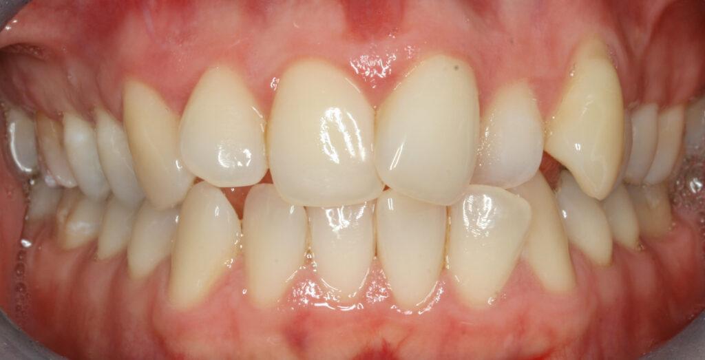 Our patient Wioleta's teeth before Fastbraces® treatment began.   Photo by P J Laskowski