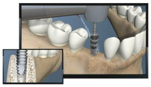 Versak Dental Implant Burs