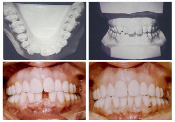 Smiletru orthdontics